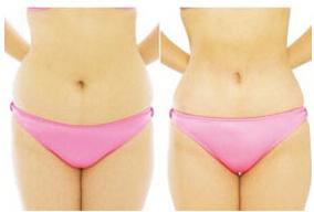 腰部吸脂术前的准备工作该怎么做?