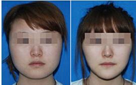 吸脂瘦脸的术后护理该怎么做?