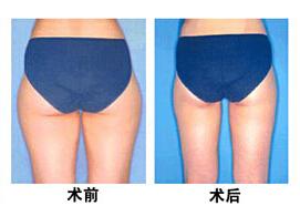 沧州中西医结合臀部吸脂案例