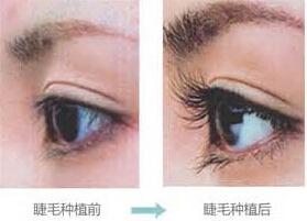济南海峡翘睫美瞳术案例