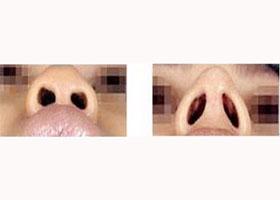 怀化市第三人民医院鼻部整形案例