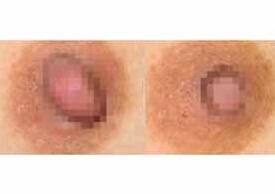 新乡第二人民医院乳头乳晕矫正案例
