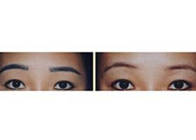 三门峡张琳激光洗眉案例