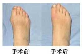 许昌人民医院大脚骨微创无痛矫治术手术案例