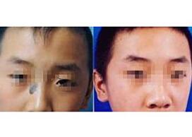 商丘第一人民医院治疗黑毛痣案例