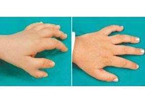 商丘第一人民医院多指趾畸形矫正案例