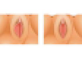 保定现代女子医院阴唇整形手术案例