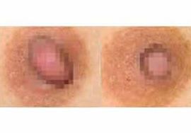 大庆现代女子医院乳头乳晕缩小案例