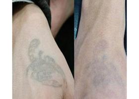 遵义利美康洗纹身案例