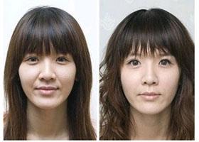 云南中医学院附设中医小帽子除皱抗衰案例