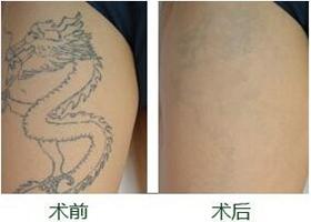 漾濞人民医院激光洗纹身案例