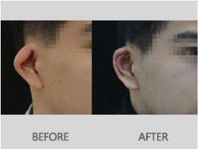 北京精艺吉美环状耳整形案例