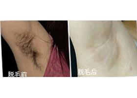 北京卫人中医医院激光脱腋毛案例