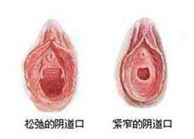 北京汇美丽阴道紧缩案例