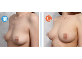 北京圣嘉新脂肪移植技术案例