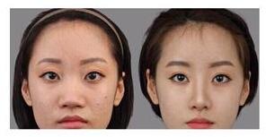 北京岩之畔鼻孔缩小案例
