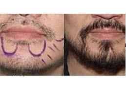 北京熙朵胡须种植案例