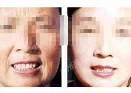 北京联合丽格卓彦Ulthera 极线音波拉皮案例