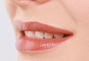 求美者做完激光脱唇毛应要注意哪些事项呢?