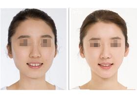 北京贵之颜下颌角整形案例