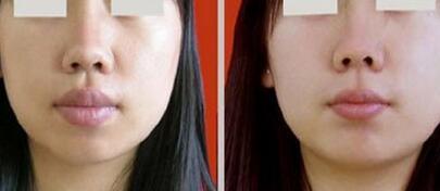 厚唇变薄步骤是如何进行的?