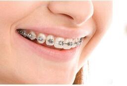 求美者牙齿不齐做牙齿矫正治疗会很痛吗?