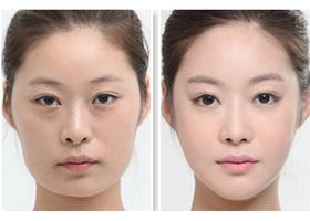北京澳保加下颌角整形案例