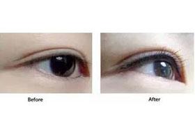 北京欧普曼双眼皮案例