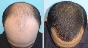 头发种植的价格是在10-20元左右一株吗?