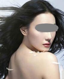 杯状耳矫正术后疤痕明显吗?