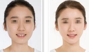 宁德下颌角整形手术效果图