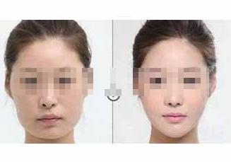北京嘉华下颌角整形手术案例