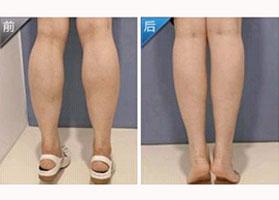 北京鹏爱botox瘦小腿案例