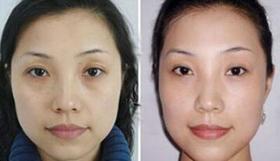北京美再生激光去黑眼圈案例