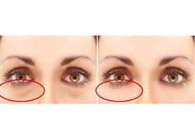 北京美诗沁祛眼袋失败修复手术案例