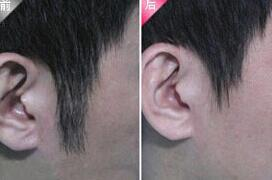 北京桂莹发际线脱毛案例