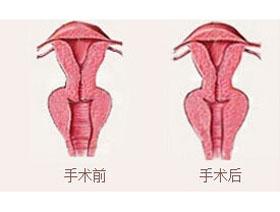 北京时珍堂阴道紧缩案例