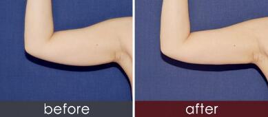 厦门手臂吸脂手术效果图