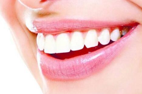 牙齿美白是否需要数天的时间呢?