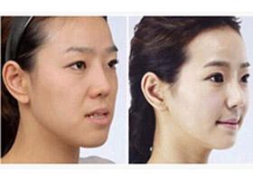 北京亚医牙槽骨内推案例