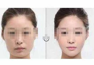 北京圣嘉荣下颌角整形手术案例