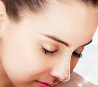 广州全鼻整形手术是怎么做的?