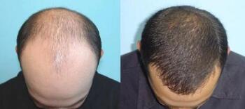 北京澳玛星光头发种植案例