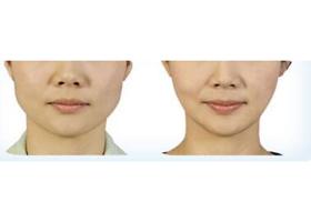 北京宝莹隆下巴手术案例