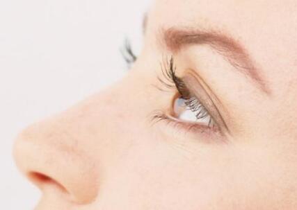 双眼皮手术后要多久能恢复自然?