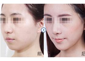 北京宝莹瘦脸针案例