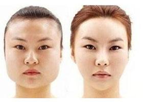 北京华医中西医结合瘦脸针案例
