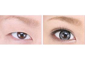 首都医科大学宣武双眼皮手术案例