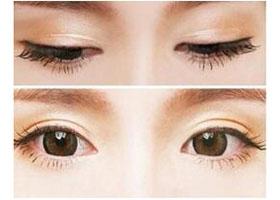 北京臻瑞美思童双眼皮案例