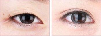 北京卡贝媞双眼皮手术案例